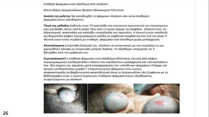 Σταθερό φαρμακευτικό εξάνθημα από Silodosin